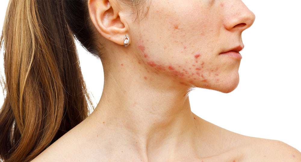 Removed Acne Scars