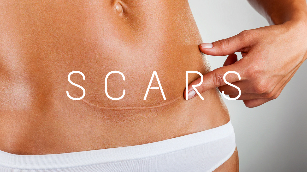 How to Get Rid of Scar Tissue