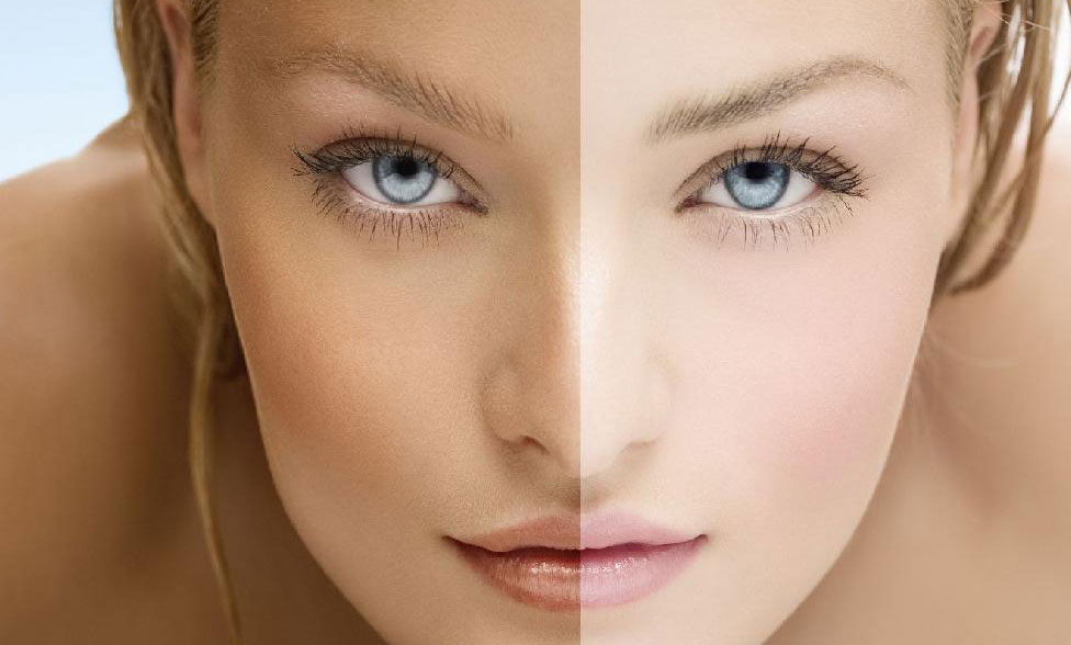 Natural Ways to Lighten Skin Tone