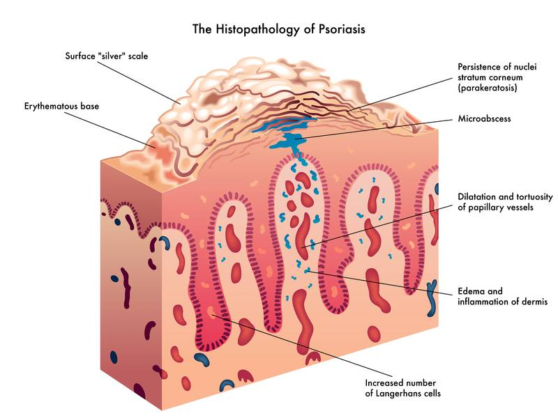 How to get rid of psoriasis psoriasis ccuart Image collections