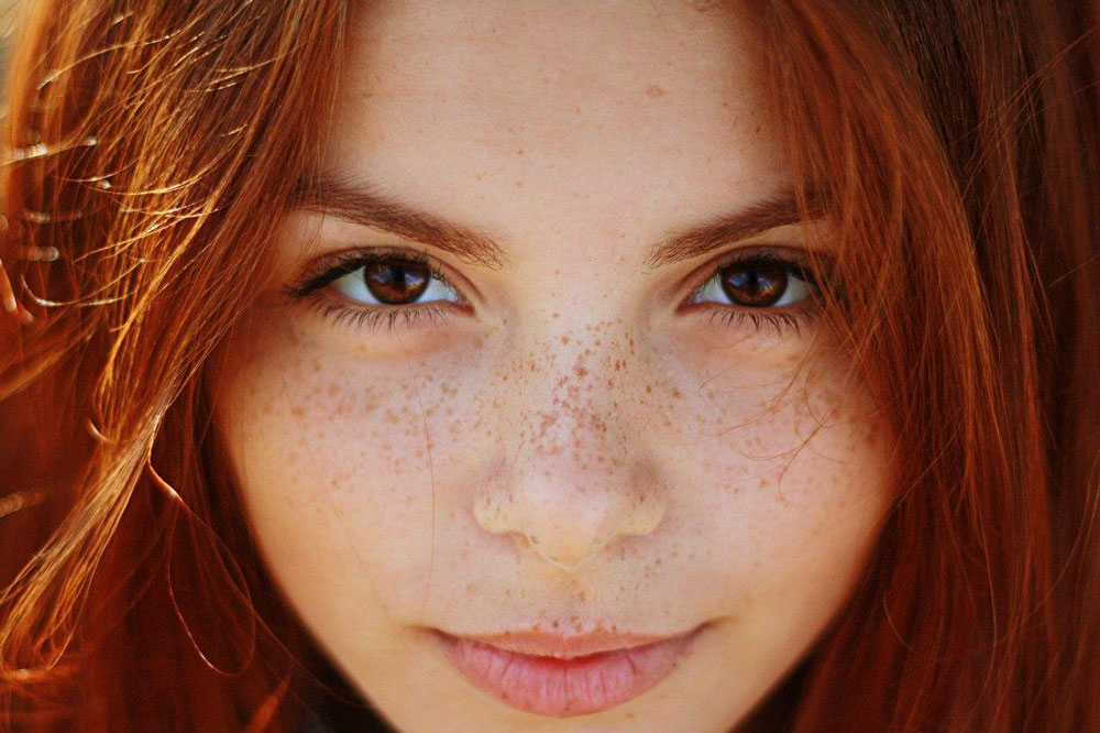 How to Clear Freckles on Your Face