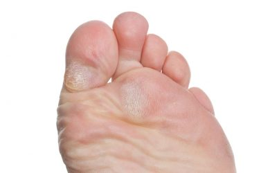 Get Rid of Calluses on Feet Overnight
