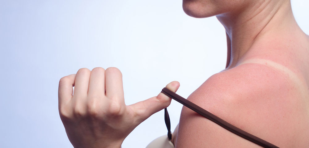 How To Even Out Tan Lines