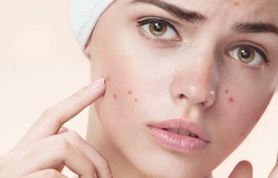 How to Clear Blemishes on Your Face