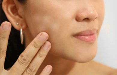 How to Get Rid of White Patches on Skin