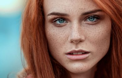 Tips to Lighten Freckles on Your Face Quickly